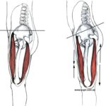 What is Adaptive Muscle Shortening?